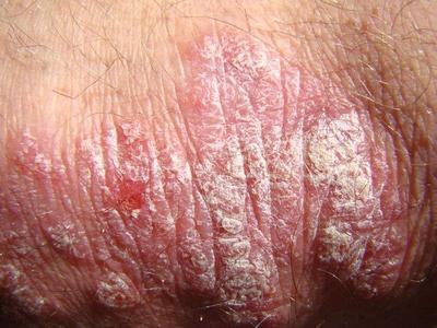 脓疱型银屑病比较严重会传染吗?